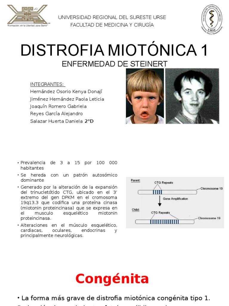 Distrofia Muscular De Steinert Download