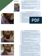 Digital Manipulation of Larinx