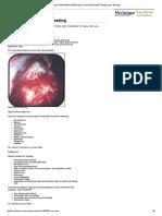 Upper Gastrointestinal Bleeding_ Practice Essentials, Background, Etiology