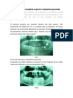 Prótesis Fija Completa Superior Implantosoportada