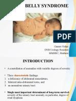 prunebellysyndrome-160825114825