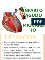 infartoagudodemiocardio-130413103835-phpapp02