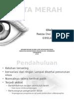 Ppt Mata Merah - Rezza