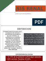 Litiasis Renal Jaco