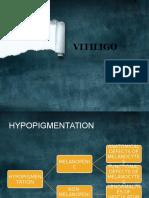 vitiligo-130721080838-phpapp01