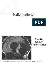 DW malformations