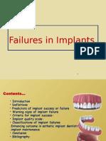 implantfailurepankajfinal-160120192933