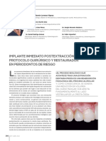 Implantes Post Extraccion1
