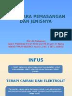 Ivfd, Cara Pemasangan Dan Jenisnya