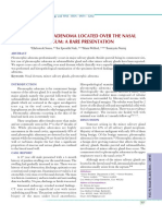 10.PLEOMORPHIC ADENOMA LOCATED OVER THE NASAL DORSUM A RARE.pdf