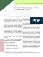 Insular Carcinoma of Thyroid – Unusual Variant