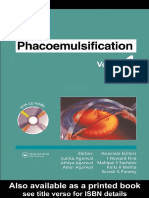 Phacoemulsification v1