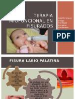192391072 Terapia Miofuncional en Fisurados