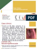 Laringectomia Parcial caso clínico