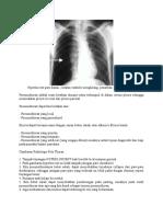 gambaran radiologi pneumotorak