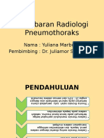 Radio Pneumothorax