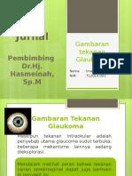 Gambaran tekanan Glaukoma