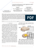Analysis of EEG Seizure using Fractal Dimensions by the Application of ECT Stimulus to Cerebral Cortex