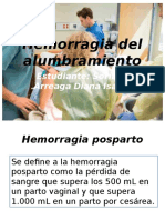 Hemorragia posparto