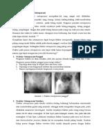 Fraktur Pada Penderita Osteoporosis.docx