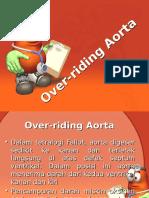Over Riding Aorta