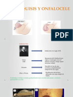 Gastroquisis y onfalocele