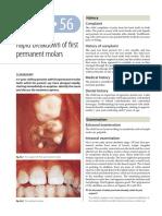 56.Rapid breakdown of first permanent molars.pdf