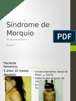 Síndrome de Morquio (MPS)
