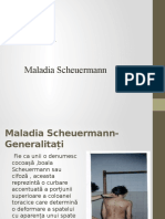 Cifoza - Boala SCHEUERMANN