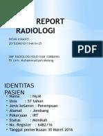 CASE REPORT Efusi Pleura