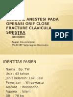Presentation Anestesi