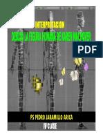CLASE IV GRAFICOS DFH KAREN MACHOVER.pdf
