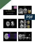 22 Cha Brain Tumor Imaging