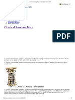 Cervical Laminoplasty - Roush Spine _ Roush Spine