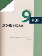 9 Lesiones Negras