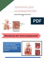Neumonia Por Broncoaspiracion