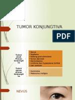Tumor Konjungtiva