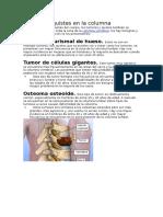 Tumores y Quistes