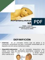Hiperbilirrubinemia Neonatal