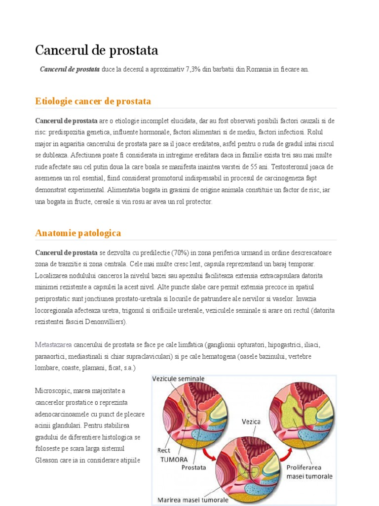 Ginecologia varicelor pelvine