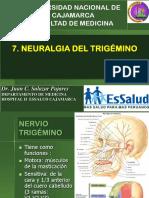 7 Transtornos Nervio Trigémino