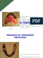 Proteza-flexibila