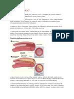Qué es la angina.docx