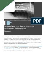 Radiografía de Tórax- Datos Clave en Los Traumatismos Más Frecuentes.