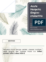 Acute Herpetic Gingivostomatitis (Perio)