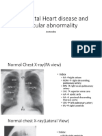 Congenital Heart Disease and Vascular Abnormality