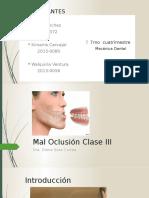 Maloclusion Clase 3