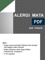 Alergi Mata- Adey