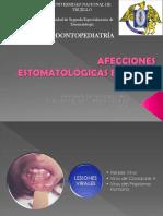 Afecciones Estomatológicas en Niños