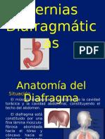Hernias Diafragmaticas